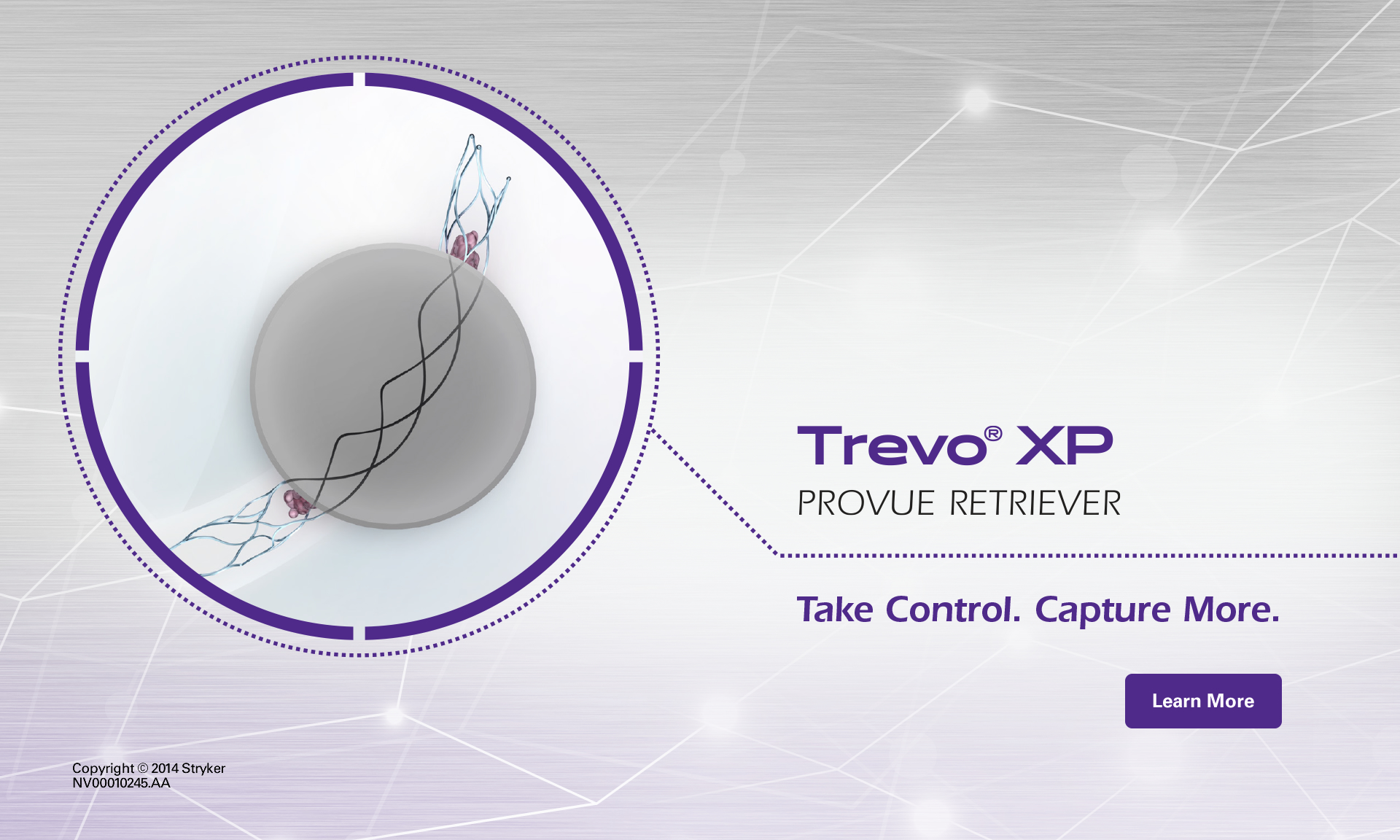 Learn more about the Trevo XP ProVue Stent Retriever  | Click for More